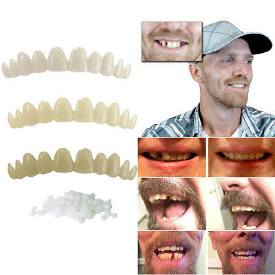 FT- Natural Temporary Replace Missing Teeth Cover Veneers Denture Oral Care Grea
