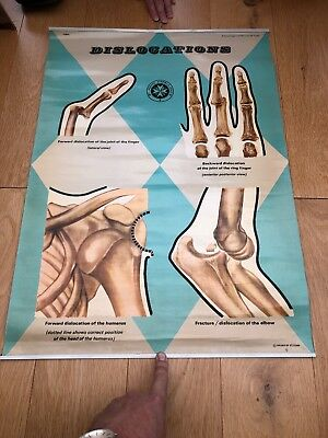 Vintage Original St Johns Ambulance Dislocations Anatomy Medical Poster Wall Art