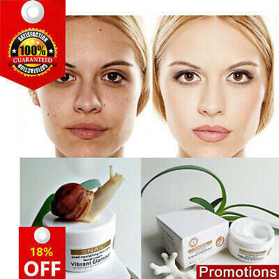 Snail Repairs Face Cream Acnes Whitening Pigment Spots Remove Wrinkles Brighten
