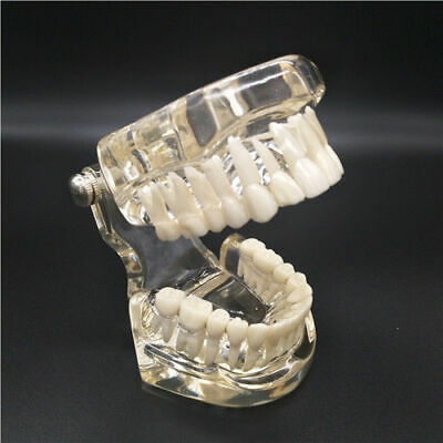 1x Dental Typodont Orthodontic Standard Teeth Study Model Without Braces Clear