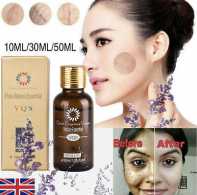 Ultra Brightening Spotless Oil Pure Natural Remove Ance Scar Repair Skin Care