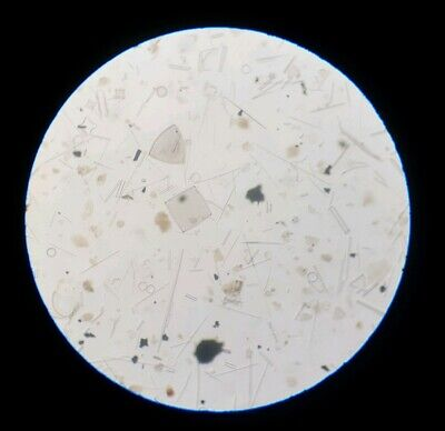 Fine Antique Victorian  Microscope Slide Diatoms By J.d. Moller