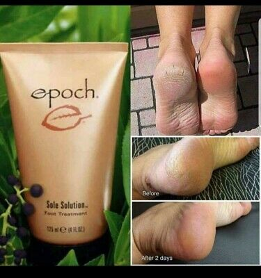 epoch sole solutions foot cream