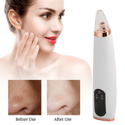 Electric Facial Skin Care Pore Blackhead Cleaner Remover Vacuum Acne Cleanser Ki