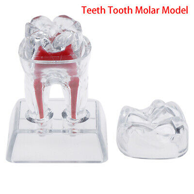 Dentist Dental Base Hard Plastic Teeth Tooth Molar Model Separable*Fit Smile  F4
