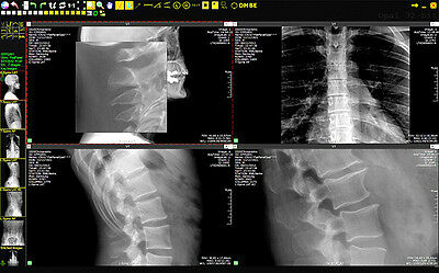 Chiropractic DR Digital Xray System with Opal Chiro Software & 3 Year Warranty!
