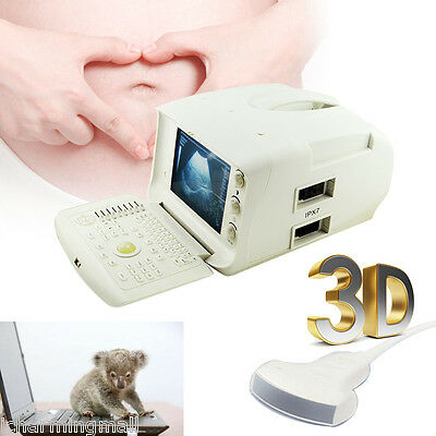 2016 NEW Portable Ultrasound Scanner w Convex probe used in hospital clinic +3D