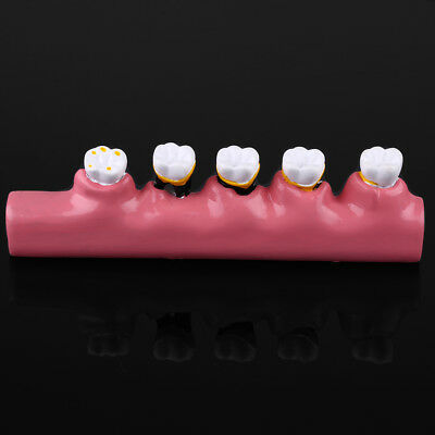 Dental Model Periodontal Disease Assort Tooth Typodont Teach Model New