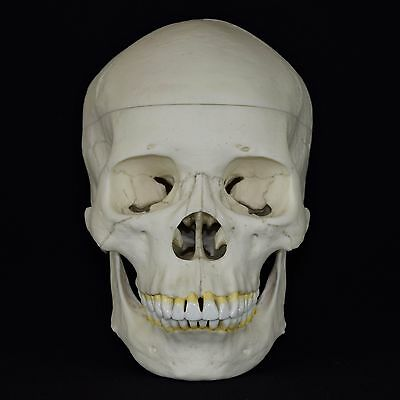 Human Female Asian Adult Skull Replica (Real Size) Calvarium Cut With Stand.