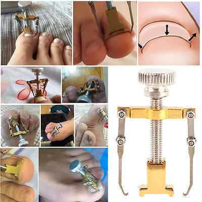 Ingrown Toe Nail Recover Correction Tool Pedicure Toenail Fixer Foot Nail Care =