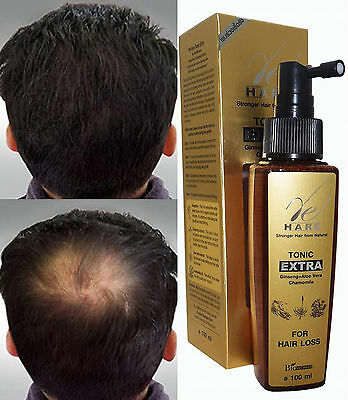 GINSENG Re-Growth Thinning For Chronic Hair Loss Regrow DHT Blocker TONIC 100ml