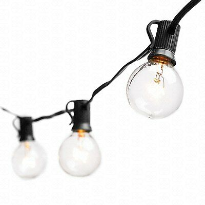 Deneve Globe String Lights with G40 Bulbs (25ft.) - Connectable Outdoor Garden..