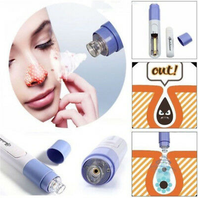 Facial Pore Cleanser Acne Remover Sucker Cleaner Blackhead Zit Removal Skin HE