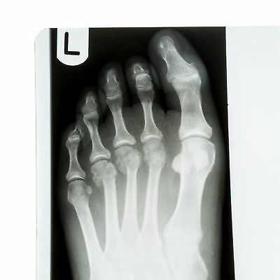 Collection of x-rays of Human Feet