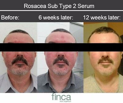 type 2 Rosacea Treatment/serum 30ml natural alt. to soolantra. proven results