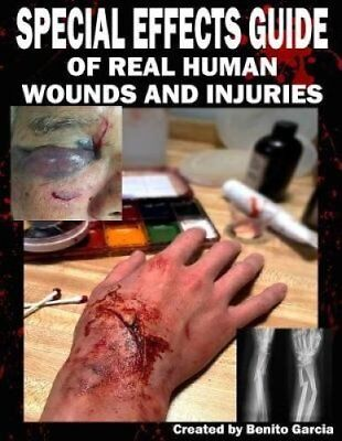 Special Effects Guide of Real Human Wounds and Injuries Special... 9781977642059