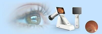 Microclear Portable Fundus Retinal Camera