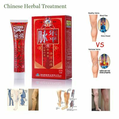 1 x Chinese Medicine Varicose Veins Ointment Phlebitis Treatment Cream For Legs