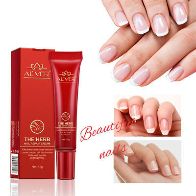 2XNew Nail Repair Cream Nourishing Herb Fingernail Care Treatment Striking UK FN
