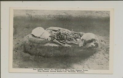 Kentucky - Wickliffe - Ancient Buried City - Archaeological Site - Siamese Twins