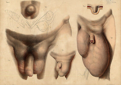 2 Antique Medical Anatomy Prints-HERNIA-SCROTUM-PENIS-Pl. 34-Bourgery-1831