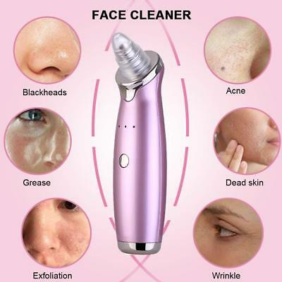 2018 Electric Face Acne Blackhead Remover Vacuum Eliminator Pimple Cleaning Tool