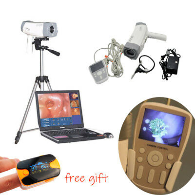 Electronic Colposcope Vaginoscope Video SONY Camera 800,000 pixels Handle Tripod