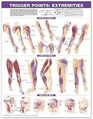 TRIGGER POINT EXTREMITIES PAPER (LAMINATED) POSTER (66x51cm) ANATOMICAL CHART