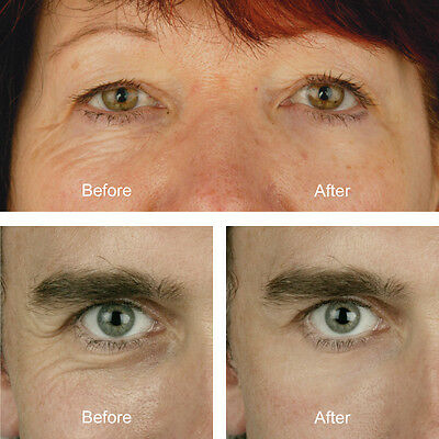 2 X Eyelift Kit to remove lines, wrinkles & bags for perfect eyes in an instant!