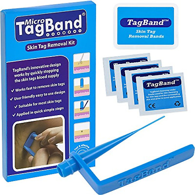 Skin Tag Remover Device Micro Medium Large Tags Skintag Removal Device Band NEW