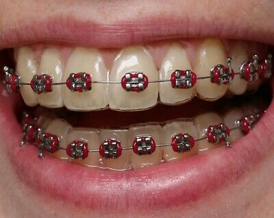 Fake Orthodontic Braces - custom made to your teeth - for acting or fancy dress