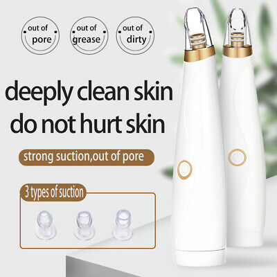 Electric Blackhead Remover Pore Vacuum Suction Dermabrasion Face Cleaner-SL