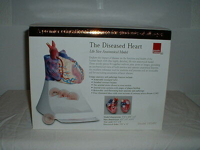 The Diseased Heart Life Size Anatomical Model 1454M NEW