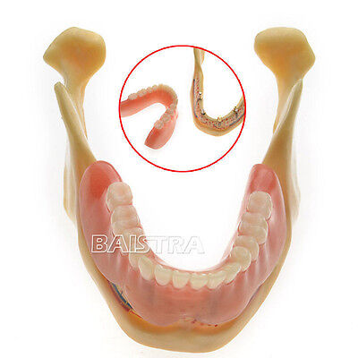 Dental teeth Implant model of the lower jaw for study and teach new