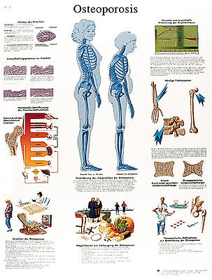 Anatomical Chart - osteoporosis, paper