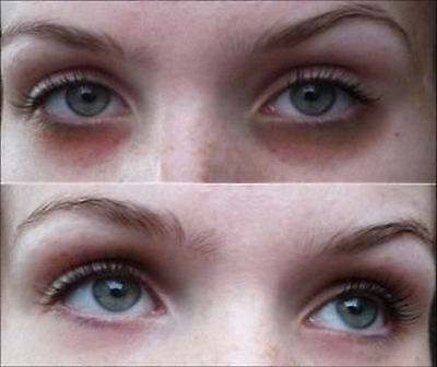 6 Days Reduce Eye Bag Dark Circles, Swollen, Brighten Eye & Grow Eyelash Gift 6g