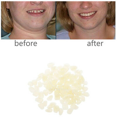 100pcs Temporary Teeth Whitening Veneers for Cracked/Chipped Teeth
