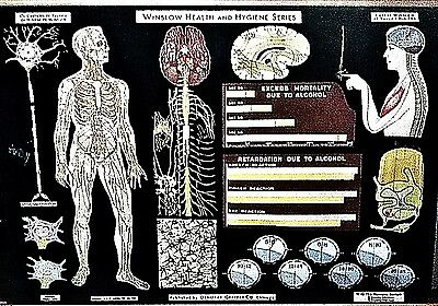Winslow Health Poster-The Nervous System-30s -Lithograph on Linen -Reduced Price