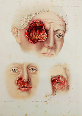 1878 Antique Anatomical Print - Colour Lithograph of Ulcer or Cancer of Face