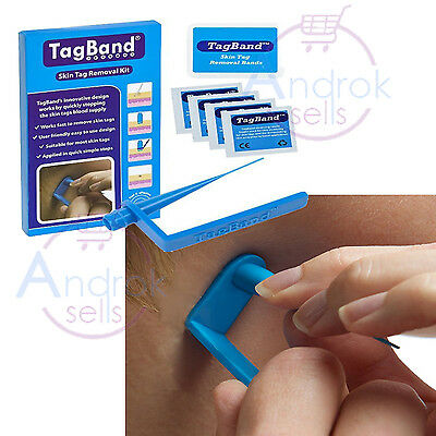 Skin Tag Remover Tag Removal Device Fresh Skin Face and Body All Skin TagBand