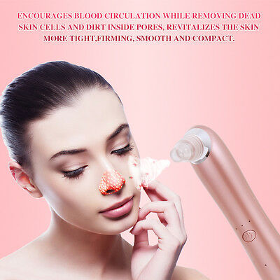 Electric Facial Pore Cleaner Cleanser Face Blackhead Pimple Acne Suction Remover