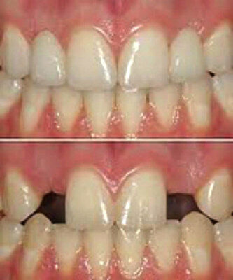 Temptooth Temporary False Tooth Replace a Tooth Fake Tooth Lost a Tooth Kit
