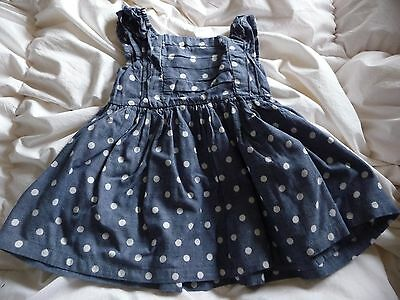 ** Pretty Spotted Top - TU (12 - 18 months) **