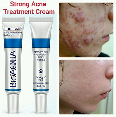BIOAQUA Acne Treatment Cream Acne Scar Removal Cream Blemish Spots Stretch Marks