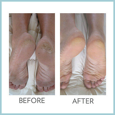 Nu Skin Epoch Sole Solution Intense Foot Therapy 125ml cracked smooth