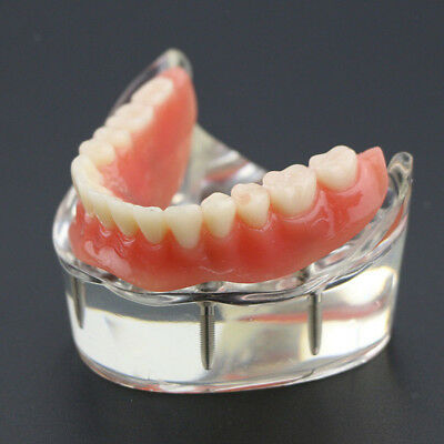 New Dental Tooths Study Model Overdenture Inferior with 4 Implants Demo