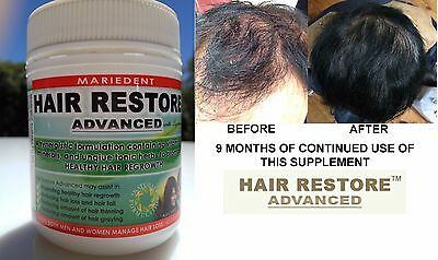 4 x Mariedent Hair Restore Advanced Hair Loss Restore Hair regrowth Supplement