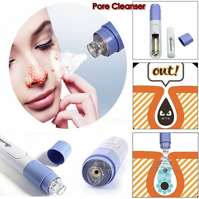 Electric Facial Pore Cleanser Cleaner Face Blackhead Pimple Acne Suction Remover
