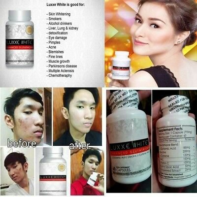 OUT OF STOCKBEST-SELLING Most Effective Glutathione Skin Whitening - Luxxe  White