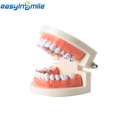 1x EASYINSMILE Dental Caries Tooth Study Model Typodont Demonstration Adult Size